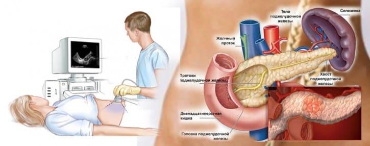 панкреатит симптомы и лечение фото